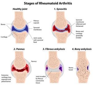 Revmatoidnyi-artrit