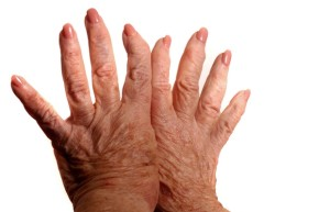 sclerodermy